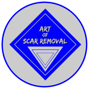 Art of Scar Removal Logo Home